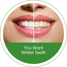 you-want-whiter-teeth