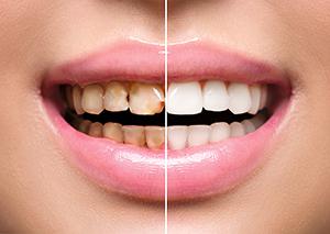 dentist for dental bonding in hoover al