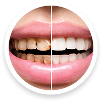 cosmetic dentists in hoover al for dental bonding