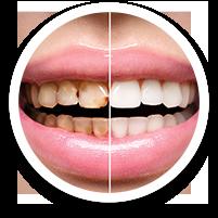 dental bonding - dental care in hoover alabama al