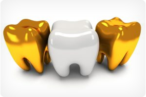 dentist for dental crowns in hoover al