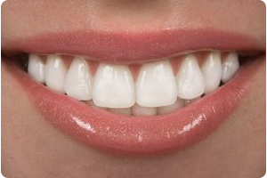 dentist for veneers in hoover al