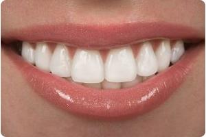 dentist for veneers in hoover al