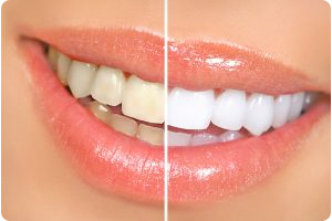 professional teeth whitening services in hoover al