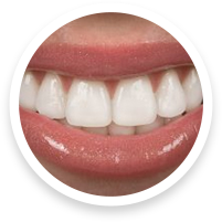 cosmetic dentists in hoover al for porcelain veneers