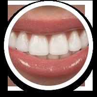 porcelain veneers - dental care in hoover alabama al