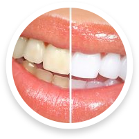 cosmetic dentists in hoover al for teeth whitening
