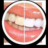 teeth whitening - dental care in hoover alabama al