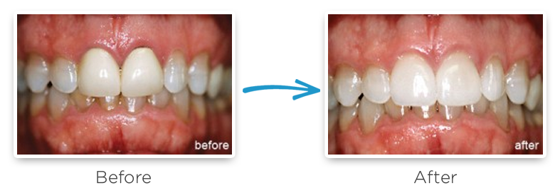ceramic dental crowns before and after photos 2