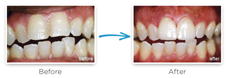 ceramic dental crowns before and after photos 3