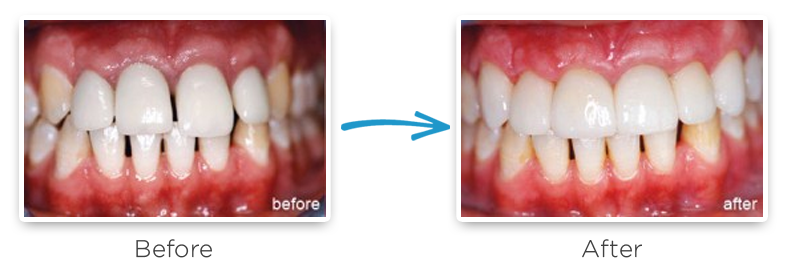 ceramic dental crowns before and after photos 4