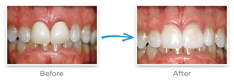 ceramic dental crowns before and after photos 5