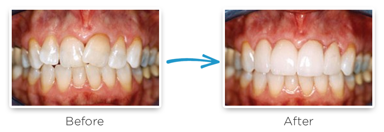 ceramic dental crowns before and after photos 6