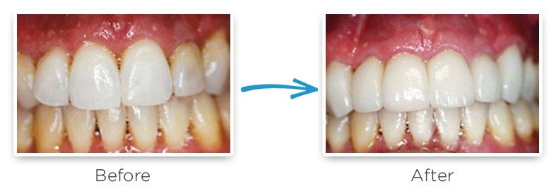 ceramic dental crowns before and after photos 7