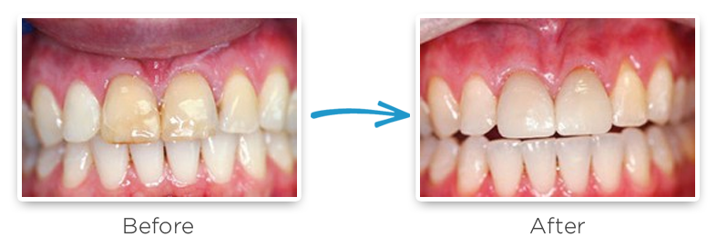 ceramic dental crowns before and after photos 8
