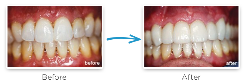 ceramic dental crowns before and after photos