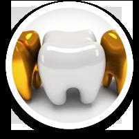 dental crowns - dental care in hoover alabama al