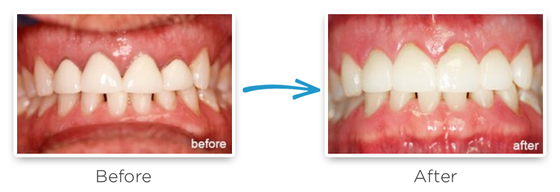 dental crown replacement before and after photo 2