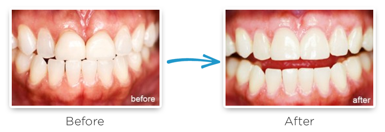 dental crown replacement before and after photos