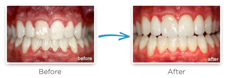dental veneers before and after photo
