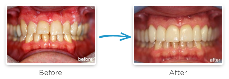 full upper rehabilitation before and after photos