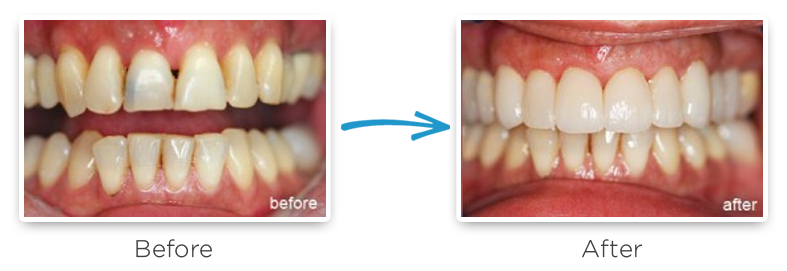 porcelain veneers before and after photos